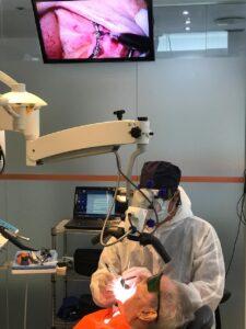 2 Tratamiento de periodoncia sobre implantes con microscopia y láser dental - Perimplantitis - clínica Ideo