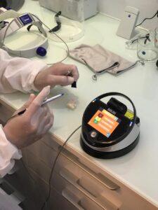 Clínica Dental Ideo - tratamiento de periodoncia con láser dental - caso clínico